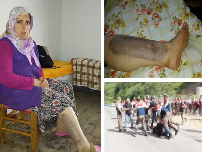 Rize'de HES'e direnen köylüleri dövdüler